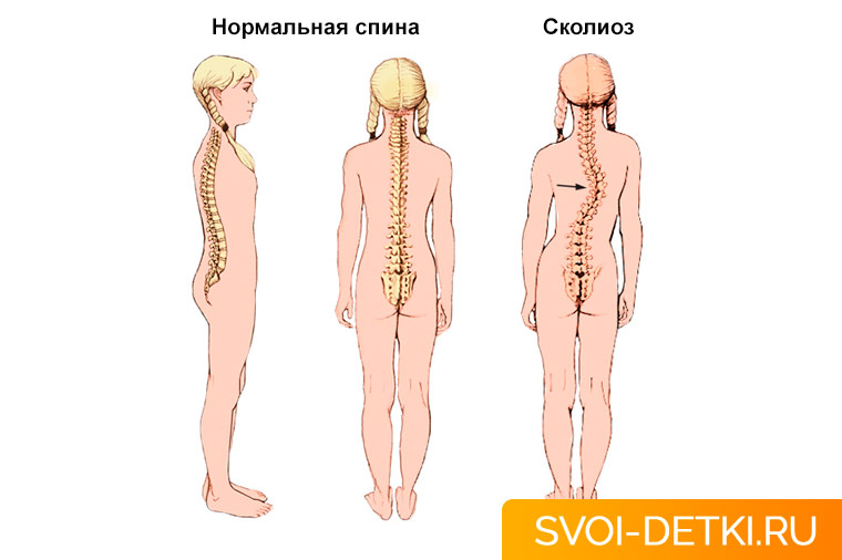 definition nature types diagnosis and treatment of scoliosis The act or process of identifying or determining the nature and cause of a disease or injury through evaluation of patient history, examination, and review of laboratory data the opinion derived from such an evaluation.