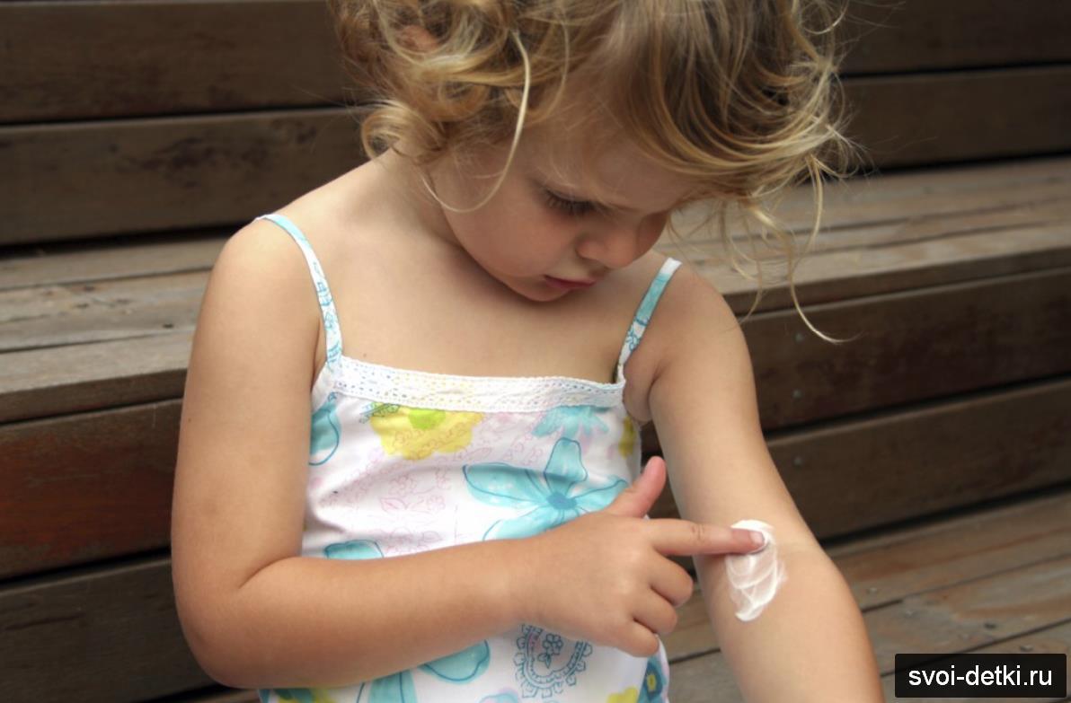 зуд при аллергии у детей снять