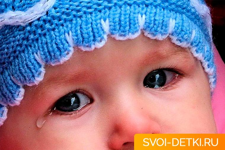 Слезятся глаза у ребенка, что делать