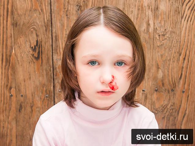 Как правильно останавливать кровь из носа
