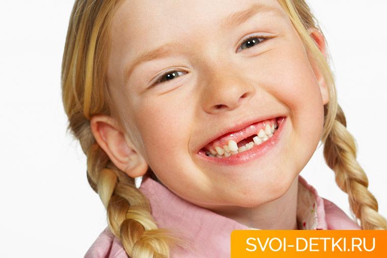 Почему нужно лечить кариес молочных зубов