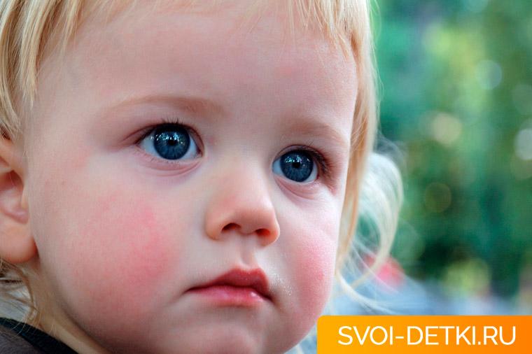 У ребенка шелушится кожа: основные причины и помощь в домашних условиях