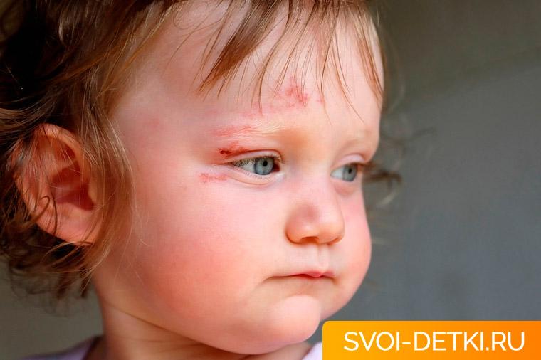 Ребенок ударился головой: что делать и в каких случаях обращаться к врачу