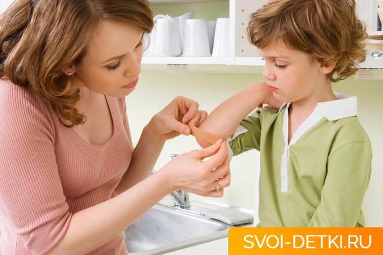Ребенок поранился сильно - помощь при порезах с кровотечением