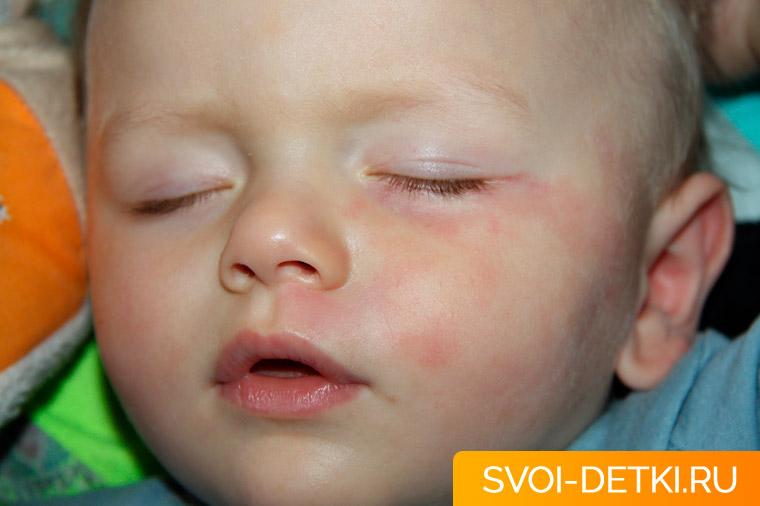 Родовое пятно у новорожденного: опасно или нет?